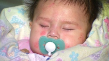 Kashechewan baby recovers from skin condition