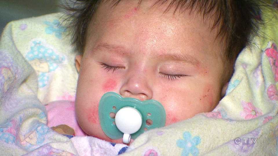 Six-month-old Jenayah Stephen recovers from a serious skin condition in Timmins, Ont., Thursday, March 24, 2016.