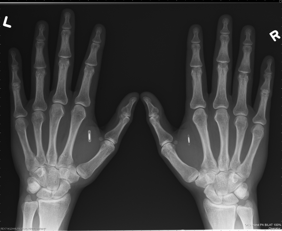 This X-ray image shows two RFID chips in a pair of human hands. (Dangerous Things)