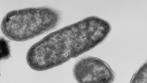 Electron micrograph images of E.coli are shown in a handout photo. (THE CANADIAN PRESS/HO-Brian Coombes Laboratory, McMaster University)