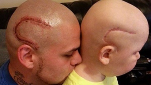 Josh Marshall of Kansas got a tattoo on the side of his head to match his son's scar from a brain cancer surgery. (St. Baldrick's Foundation / Facebook)