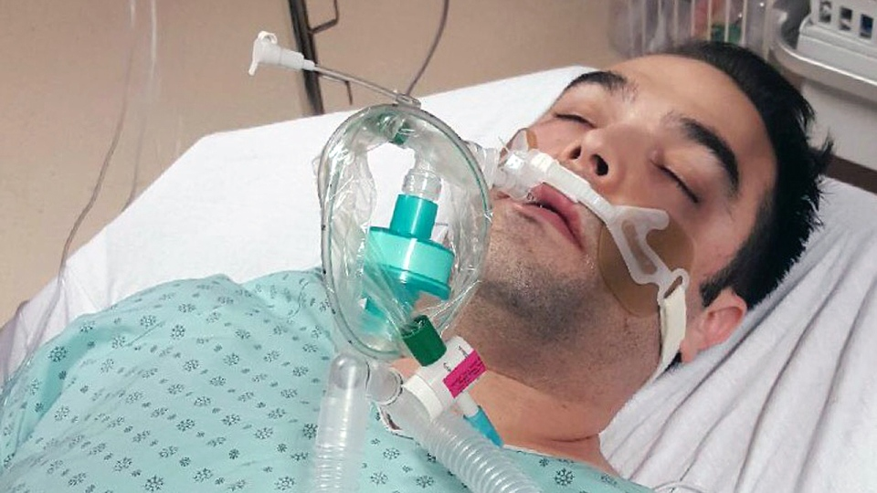 Simon-Pierre Canuel was in a coma for two days after eating salmon.