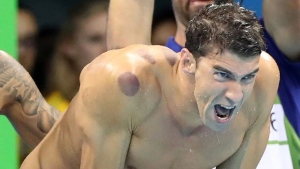With visible bruises on his shoulder and back, Michael Phelps encourages his teammates in the final of the men's 4x100-meter freestyle relay during the swimming competitions at the 2016 Summer Olympics, Sunday, Aug. 7, 2016, in Rio de Janeiro, Brazil. (AP Photo/Lee Jin-man)