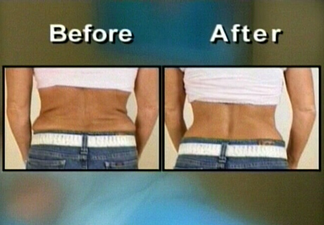 A supposed before and after treatment photo is shown.
