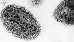 This 1975 file electronmicrograph from the Centers for Disease Control shows the smallpox virus. (CDC, File/AP Photo)