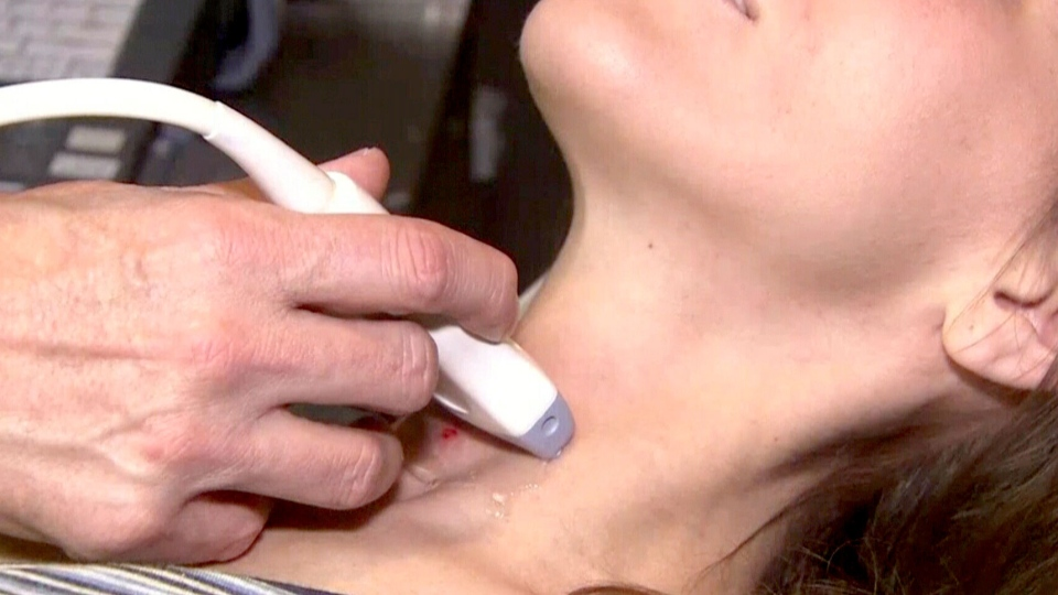 In a world first, doctors in Alberta performed thyroid transfers in 10 patients with head and neck cancers.