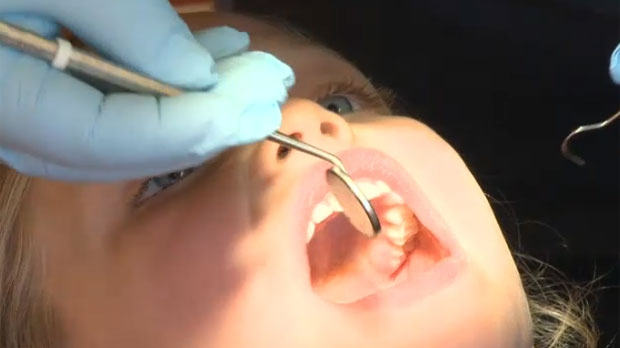 Council to consider whether Calgary should start fluoridating its water again.