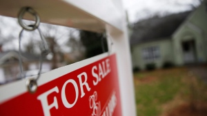 A 'For Sale' sign hangs in front of a home on Jan. 26, 2016. (AP / John Bazemore)