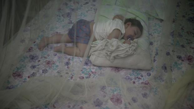 Baby born with microcephaly, zika virus