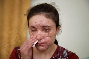In this May 5, 2016 file photo, Lamiya Aji Bashar, an 18-year-old Yazidi girl who escaped her Islamic State group enslavers, talks to The Associated Press in northern Iraq. (AP Photo/Balint Szlanko, File)