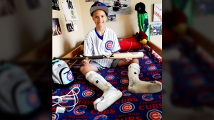 Campbell Faulkner, 10, shows his custom-made baseball bat given to him by Chicago Cubs' Kyle Schwarber, at his home in Queen Creek, Ariz., on Oct. 27, 2016. (Matt York / AP)