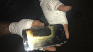 A Winnipeg man is demanding answers from Samsung after he says his smartphone exploded in his hand, sending him to hospital.