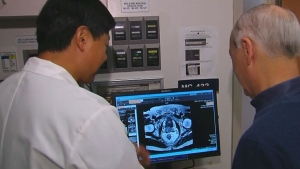 Dr. Robert Nam (left) has started a study to find out which prostate cancer screening method is best (CTV)