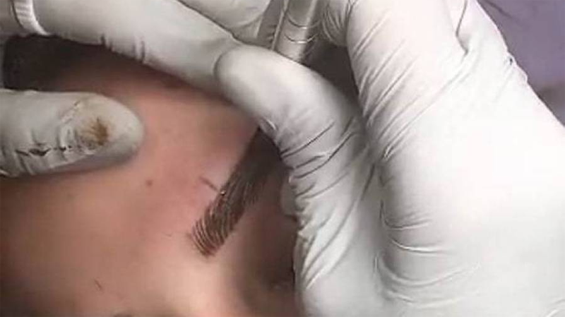 Eyebrow Microblading Can Pose Hiv Risk If Not Done Properly