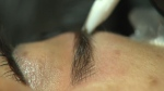An esthetician uses a small blade to administer tiny cuts to inject ink in or around the client's eyebrows.