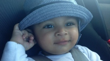 Baby diagnosed with leukemia