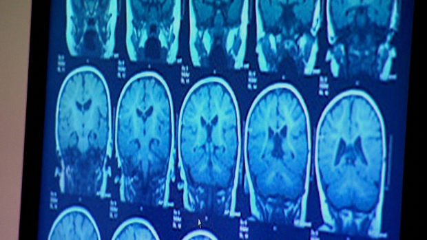 New Concussion Recommendations For Kids >> New Advice Out For Detecting Treating Concussions In Kids Ctv News