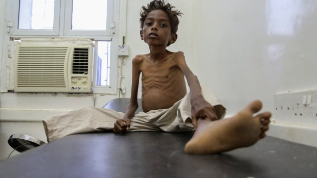 Starving boy in Yemen (UNICEF)