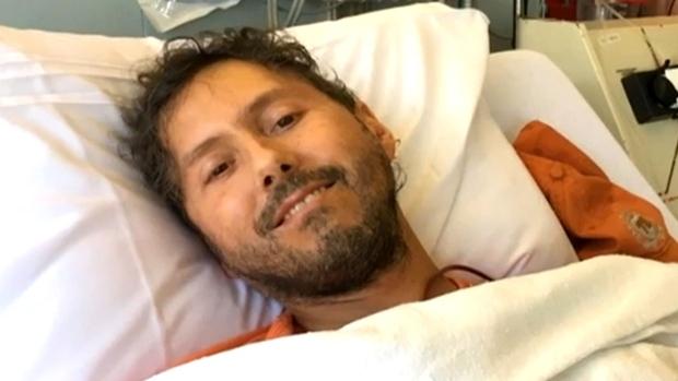 Dan Muscat, 49, developed systemic scleroderma in 2014.