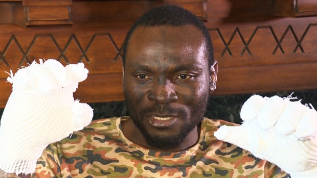 Seidu Mohammed, 24, may lose his hands to frostbite after a dangerous attempt at sneaking across the Canada-U.S. border south of Winnipeg on Dec. 24, 2016.
