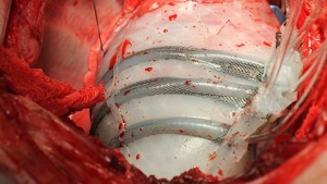 In this photo provided by Harvard University, a pig's heart encased in a robotic sleeve designed to gently squeeze a diseased heart so it better pumps blood. (Ellen Rouche/Harvard University via AP)