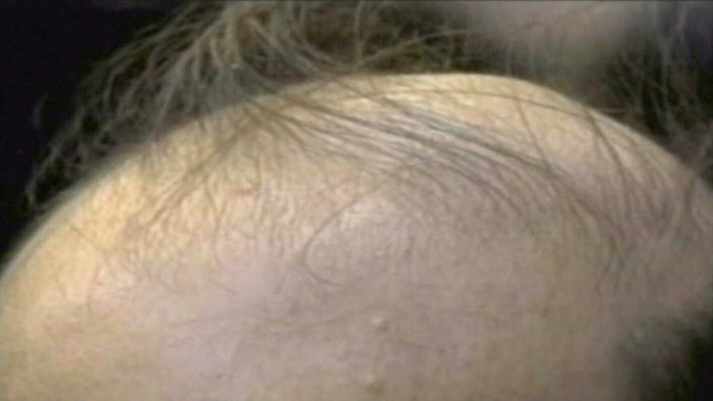 Cure for baldness? Bone drug could lead to new hair growth