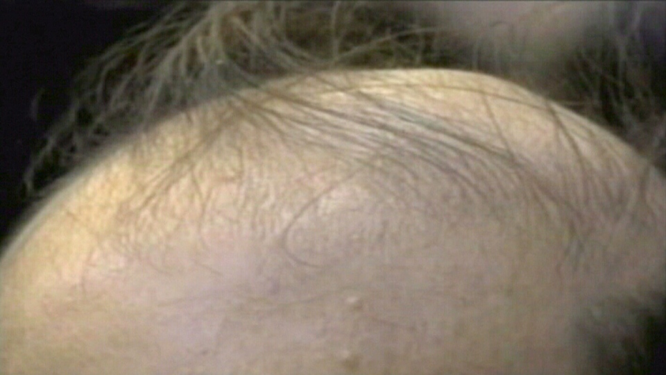 Cure For Baldness Bone Drug Could Lead To New Hair Growth CTV News Enchanting Male Pattern Baldness Cure Discovered