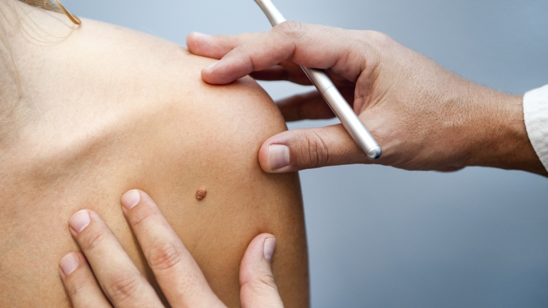 A doctor inspects a patient's mole for skin cancer in this file photo. (damiangretka / istock.com)