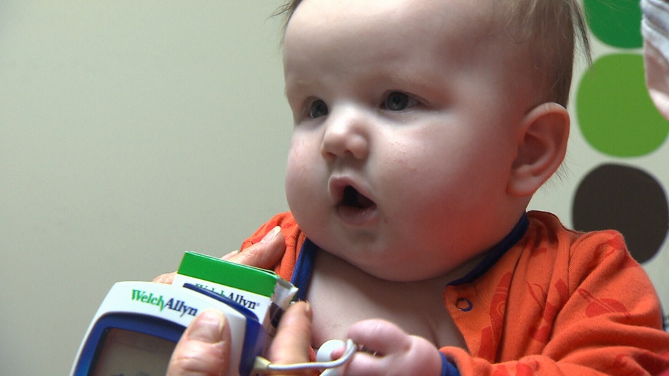 Six-month-old Xavier D'Auteuil, who needed a complicated heart surgery, is seen here.