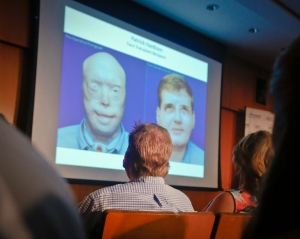 In this Wednesday, Aug. 24, 2016 file photo, former Mississippi firefighter Patrick Hardison, 42, centre, views a video showing progression of his face transplant, during a press conference marking one year after his surgery, at New York University Langone Medical Center in New York. (AP Photo/Bebeto Matthews)