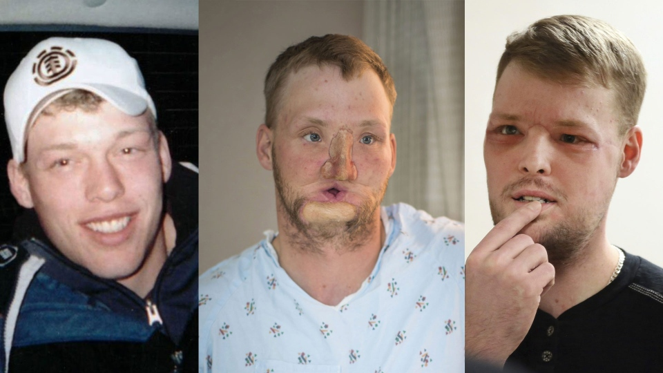 Face transplant recipient, Andy Sandness, is pictured before, during and after his life-changing face transplant.
