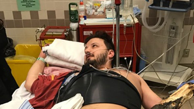 Ivan Simic at the Foothills Medical Centre following his collision with a tree branch  (photo courtesy Ivan Simic)