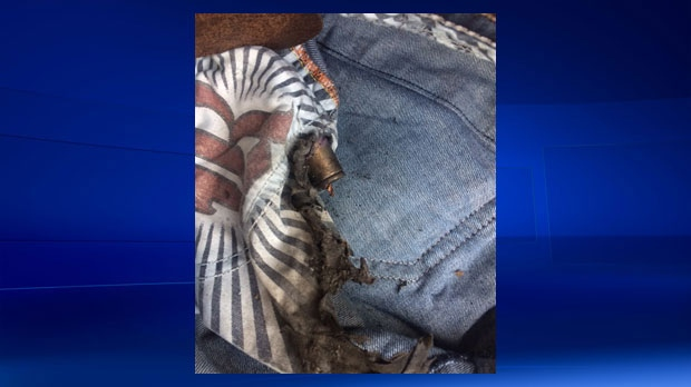 The shell of an e-cigarette battery fused into Terrence Johnson's jeans following explosion (supplied)