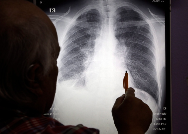 Cystic Fibrosis Patients In Canada Outlive US Counterparts