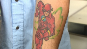 If that superhero tattoo no longer appeals to you, don't worry. Tattoo removal has improved drastically in recent years.