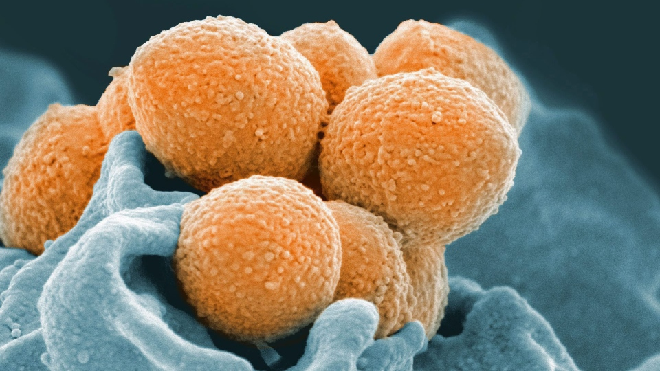 This handout image provided by the U.S. National Institute of Allergy and Infectious Diseases shows an electron microscope image of Group A Streptococcus (orange) during phagocytic interaction with a human neutrophil (blue). (National Institute of Allergy and Infectious Diseases via AP)
