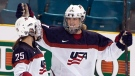 CTV National News: Women's hockey wages
