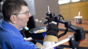 Researchers connected the arm electrodes and the brain sensors together and began using a decoder to translate the patient's brain signals. (Source: Case Western Reserve University)