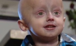Alex Whitford, 5, is believed to be the only child in Canada with progeria. (Photo: Carmen Liebel / Twitter)
