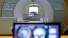 In April 2017, a document that was part of the auditor general's report into MRI management services in Manitoba was leaked to several media outlets. (File image)