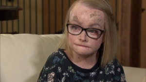 Kourtney Kujawa, 19, cries describing her dream of becoming a counsellor, a plan that's been put on hold after her medical care hours were drastically cut on her 19th birthday. (CTV)