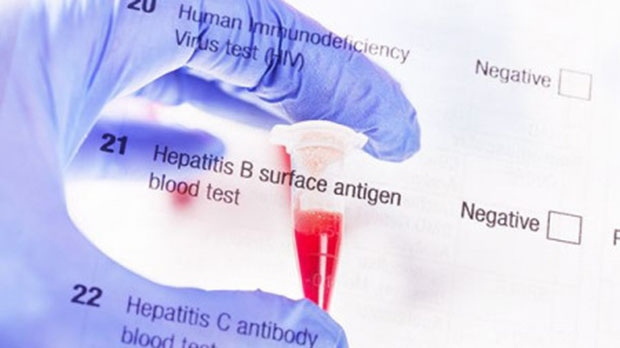 Cases of hepatitis B and C hit 325 million worldwide