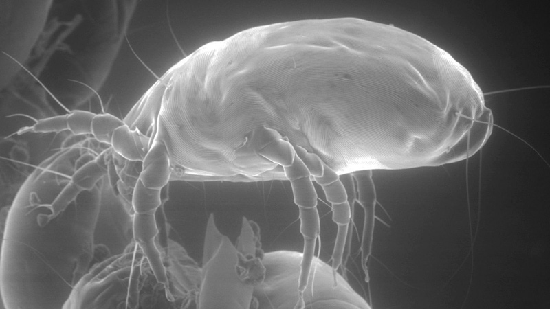 This photo shows the side view of a house dust mite, seen through an electron microscope. (AP Photo/Courtesy of Mission: Allergy, Inc.)