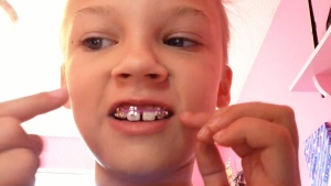 A girl tries to make homemade braces using elastics and earring backings. (YouTube)