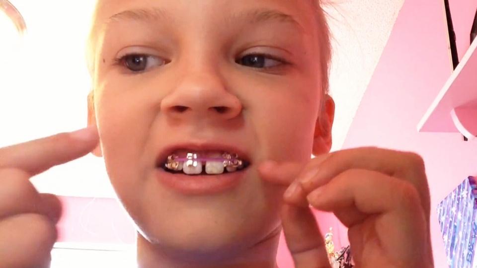 Orthodontists warn against homemade braces ctv news homemade braces solutioingenieria Gallery
