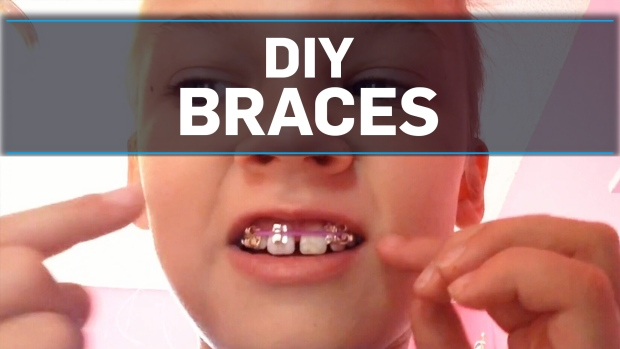 Orthodontists warn against homemade braces ctv news solutioingenieria Images