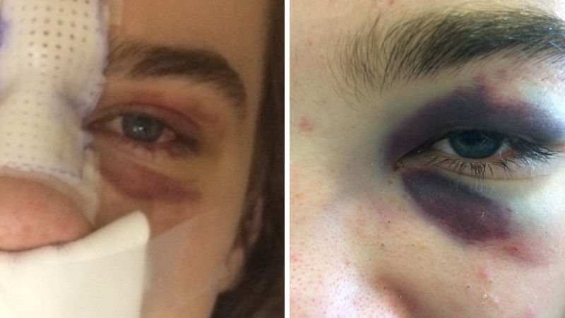 Tanya, a Spruce Grove mother, shared photos of injuries suffered by her son in a fight on May 3, 2017. Supplied.