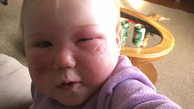 Rebecca Cannon provided this photo of her 14-month-old daughter, Kyla. Cannon says her daughter was badly burned after using a Banana Boat product in May of 2017. (Rebecca Cannon)