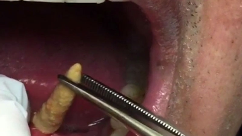 Putrid breath lands man in er doc discovers stone under tongue the salivary duct stone publicscrutiny Images