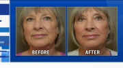 CTV Ottawa: Talking about cosmetic surgery